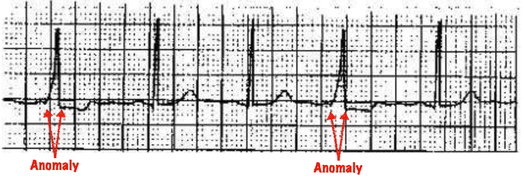 anomalies in a human heartbeat